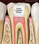Root Canals at Cape Cod Restorative Dentistry