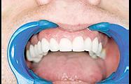 Metal Free Crowns & Bridges at Cape Cod Restorative Dentistry