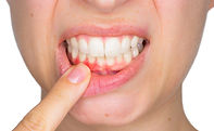 Periodontal Treatment at Cape Cod Restorative Dentistry