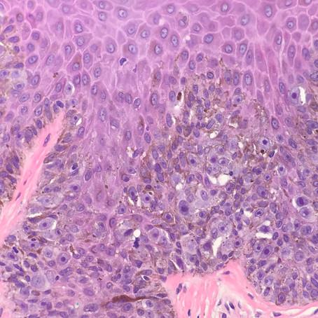 Melanoma Actually, Part 2 (of 3)