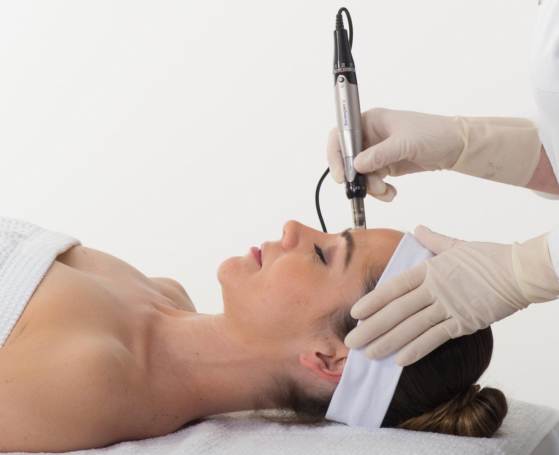 Micro-needling Facial Treatment
