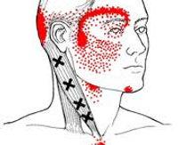 טיפול נקודות טריגר - ריפוי נישמתי