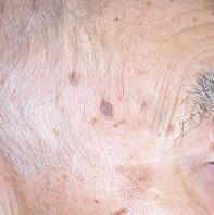 Skin Growth Before