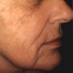 Wrinkles After