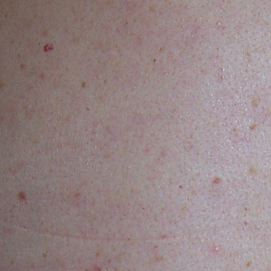 Skin Growth After