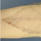 4-20-laser-tattoo-removal After.jpg
