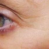 Wrinkles After-Laser