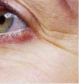 Wrinkles Before-Laser