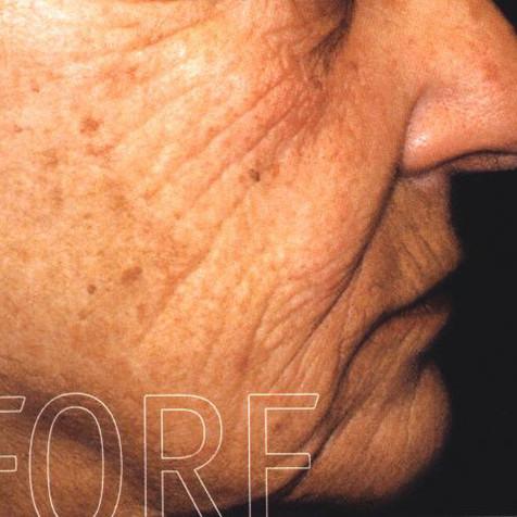 Wrinkles Before-3.jpg