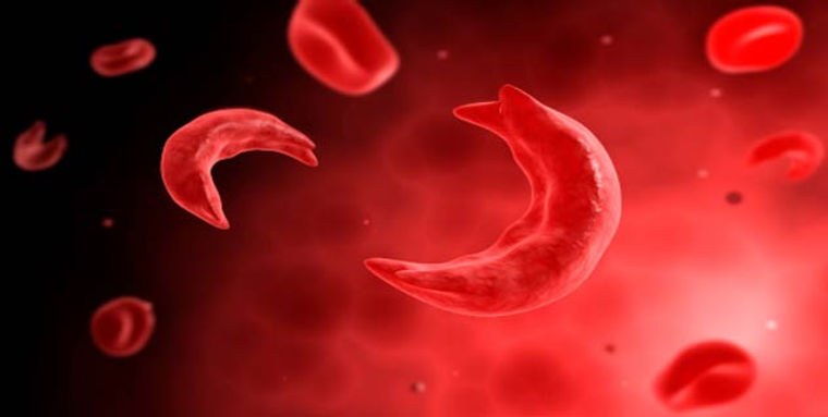 Sickle Cell Disease.jpg