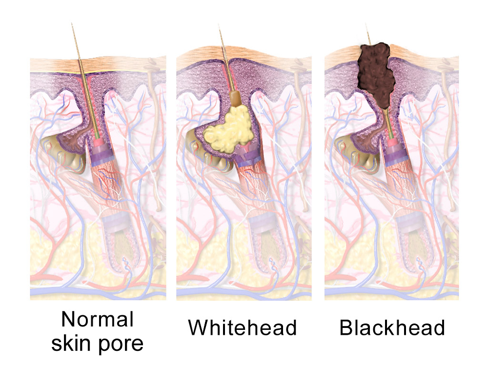 Skin Cells | Whitehead | Blackhead | Holistic Kate