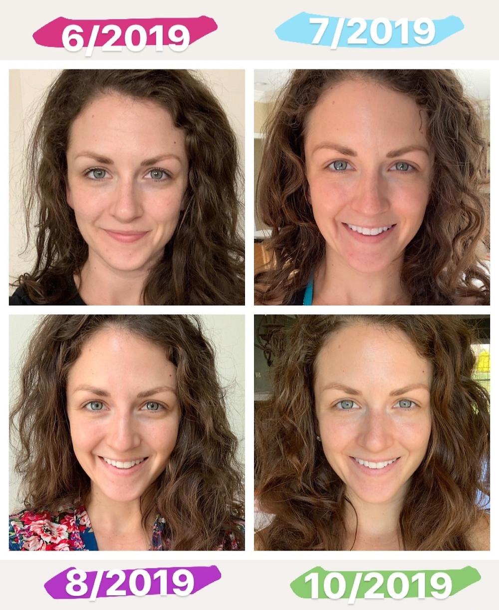 Beautycounter Countertime Results Photos