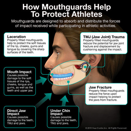 PlaySafe AT Home: The Importance of Mouth Guards