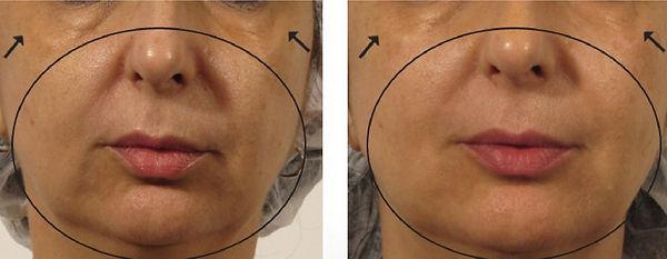 OxyGeneo Facial B&F1_edited.jpg