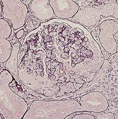 腎炎モデル組織染色