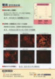抗Ⅳ型コラーゲンNC1モノクローナル抗体