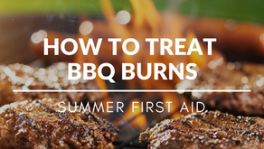 Summer First Aid - How To Treat Barbecue Burns