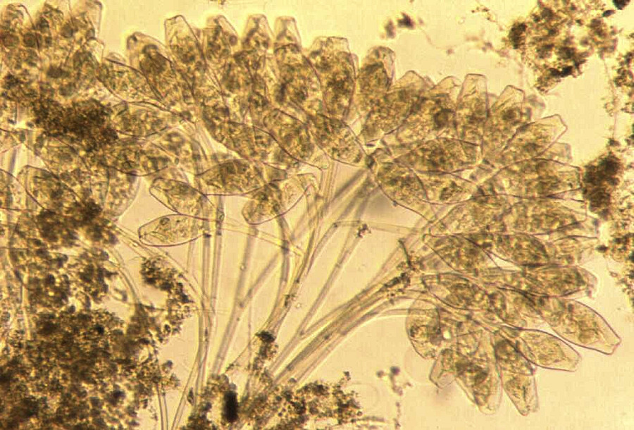 Colony of Stalked Ciliates