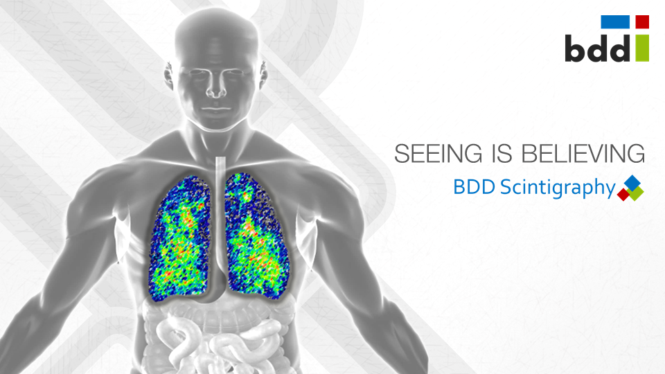 scintigraphy overview RDD Pharma Nov 2015