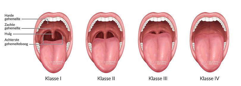 Anaesthesiology-medical-illustration-cri