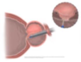 endoscopy, illustration, scientific illustration, surgery, medical, medical art, art, operation, cirugía, prostate, próstata, láser, holep, green laser, HoLEP, Urotec, medical visualization, prostate enlargement, en bloc, enucleation, urology, urología, adenoma, benign, hyperplasia