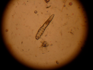 Demodex mite under the microscope.  Sometimes called Mange.