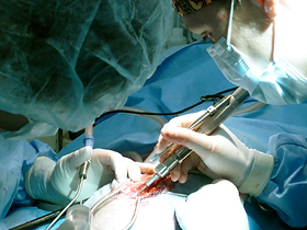 Surgery, from simple to complex, requires excellent skill and detail to achieve excellent results.