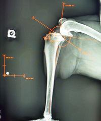 Exacting measurements by digital x-ray ensure excellent cruciate repair.