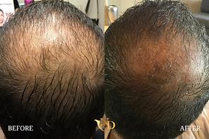 Hair Loss Treatment in Scottsdale, AZ2.p