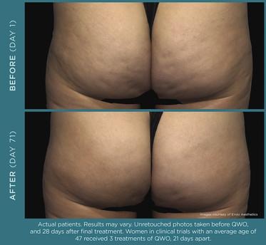 QWO Cellulite Treatment _ A New Dawn Wellness Center.jpg