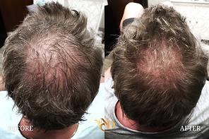 Hair Loss Treatment in Scottsdale, AZ3.p