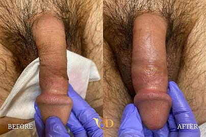 Penis Enlargement Before & After .png