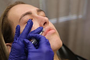 Botox Lip Flip in Scottsdale | A New Daw