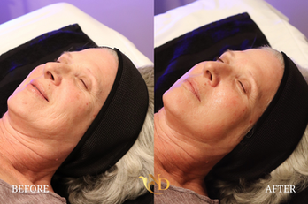 HydraFacial in Scottsdale (Before & After)8.png