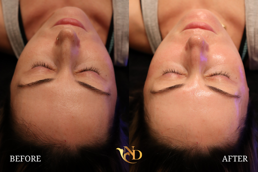 HydraFacial in Scottsdale (Before & After)1.png