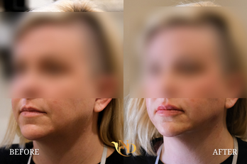 PDO Thread Lift in Scottsdale Before & After   A New Dawn Wellness Center 2.png