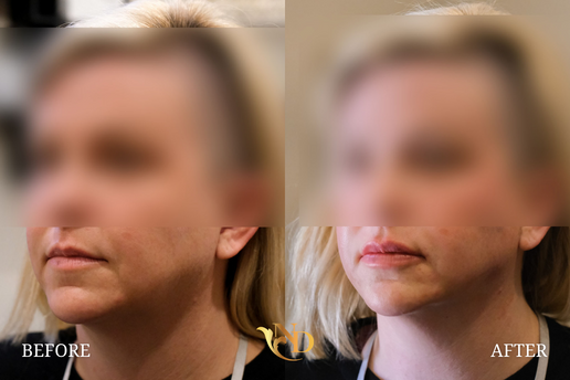 PDO Thread Lift in Scottsdale Before & After | A New Dawn Wellness Center 2.png