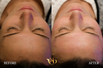 HydraFacial in Scottsdale (Before & After)2.png