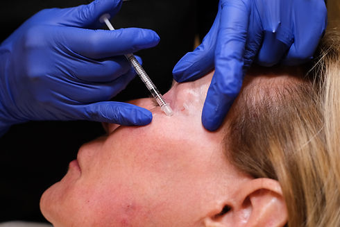 Botox Injection in Scottsdale   A New Dawn Wellness Center.JPG