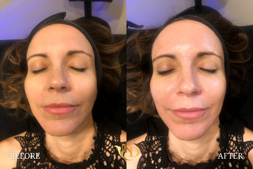 HydraFacial in Scottsdale (Before & After)4.png