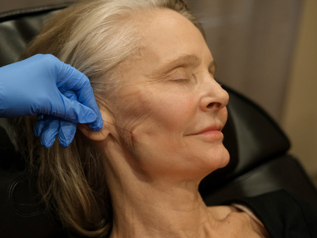 Everything You Need to Know About Our PDO Thread Lift Treatment