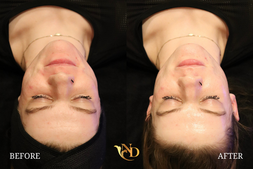 HydraFacial in Scottsdale (Before & After)5.png