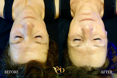 HydraFacial in Scottsdale (Before & Afte