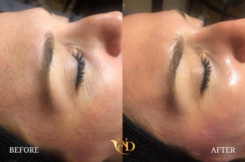 HydraFacial in Scottsdale (Before & After)7.png