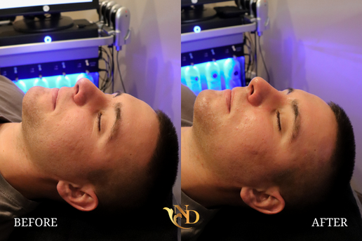 HydraFacial in Scottsdale (Before & After)3.png