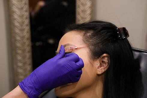 Fox Eye Lift _ A New Dawn Wellness Center.jpg
