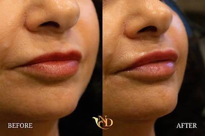 Lip Filler in Scottsdale (Before & After