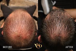 Hair Loss Treatment in Scottsdale, AZ1.p