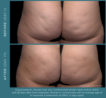 QWO Cellulite Treatment _ A New Dawn Wellness Center 3.jpg