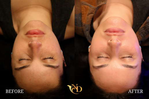 HydraFacial in Scottsdale (Before & After)9.png